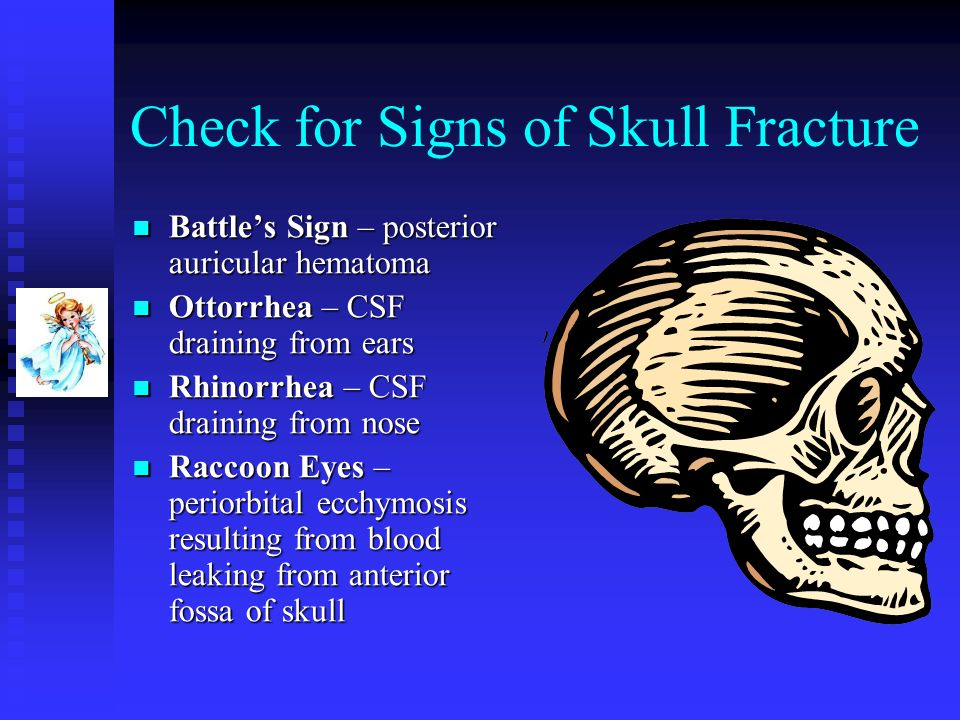 Check for Signs of Skull Fracture