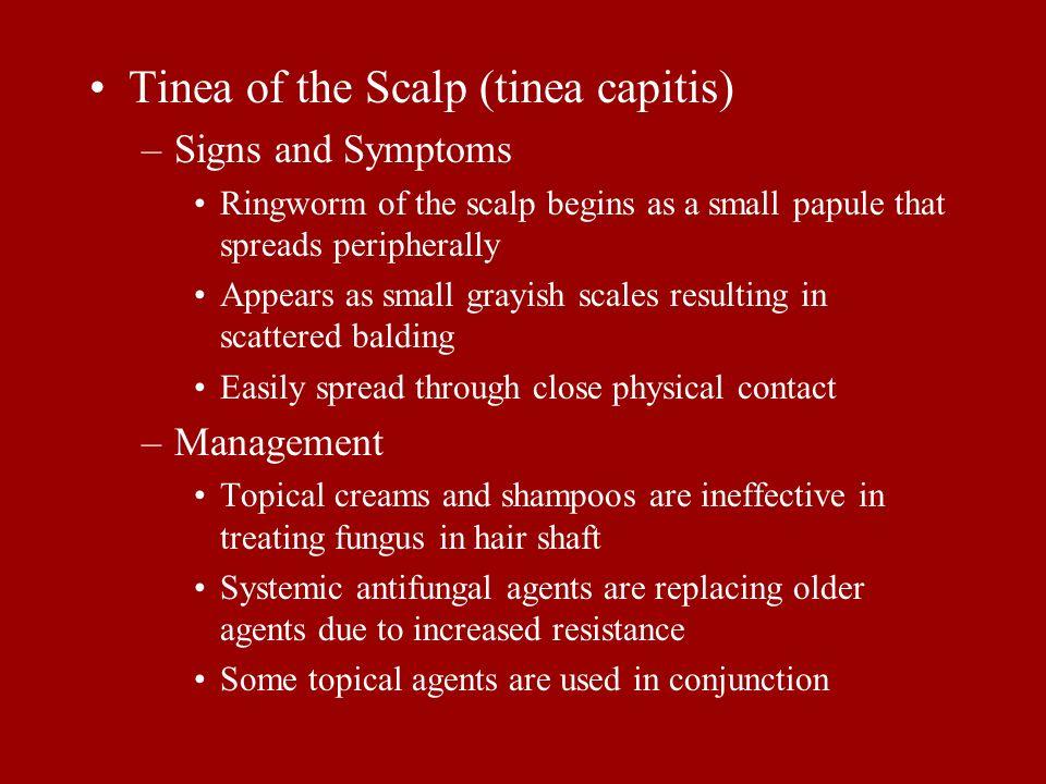 Tinea of the Scalp (tinea capitis)