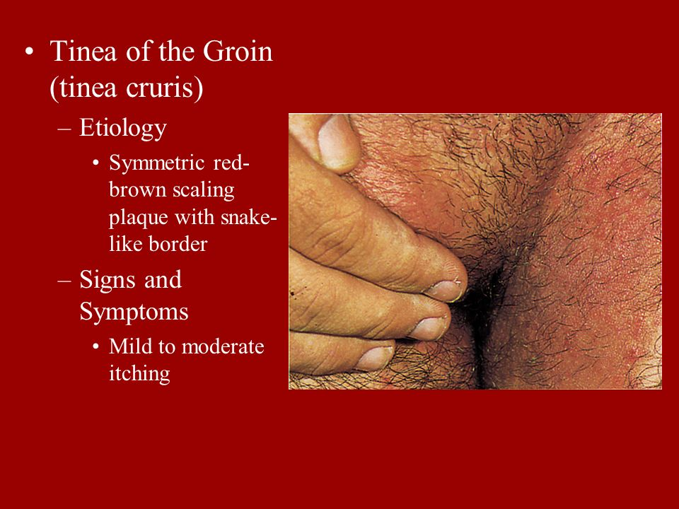 Tinea of the Groin (tinea cruris)