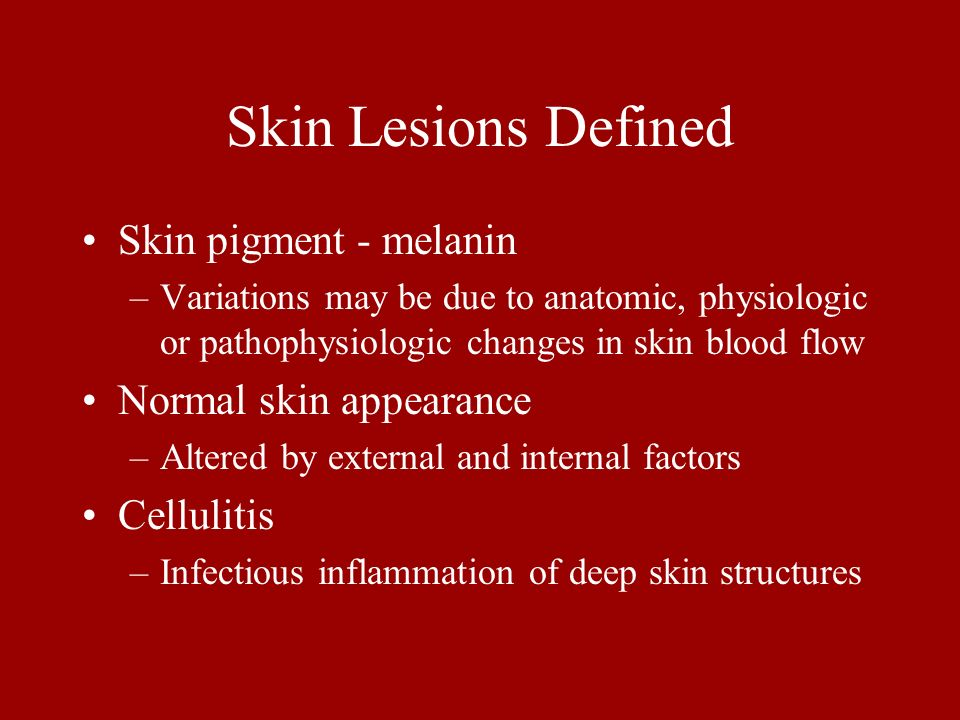 Skin Lesions Defined Skin pigment - melanin Normal skin appearance