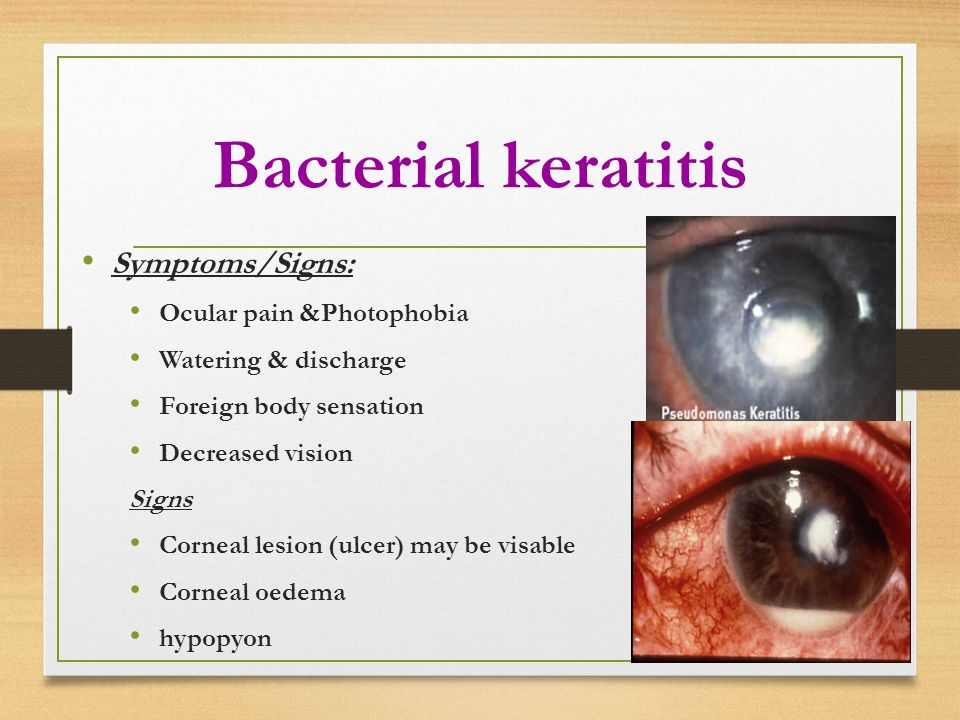 Dr Amani Badawi ASSISTANT PROFESSOR OPHTHALMOLOGY - ppt ...