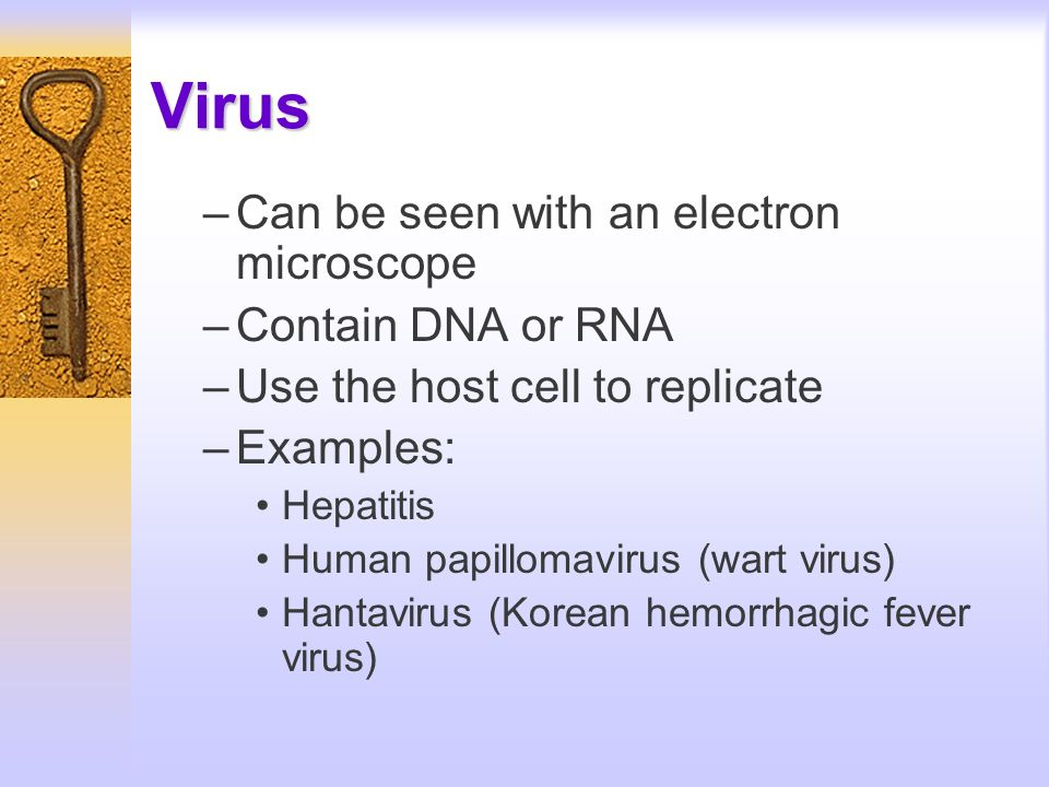 Virus Can be seen with an electron microscope Contain DNA or RNA