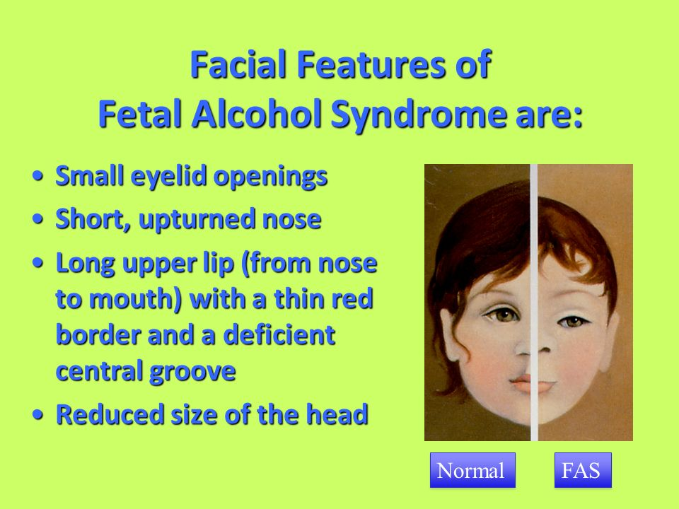 the characteristics of the fetal alcohol syndrome Children with fetal alcohol syndrome typically have multiple handicaps and require special medical what are the primary characteristics of fas.
