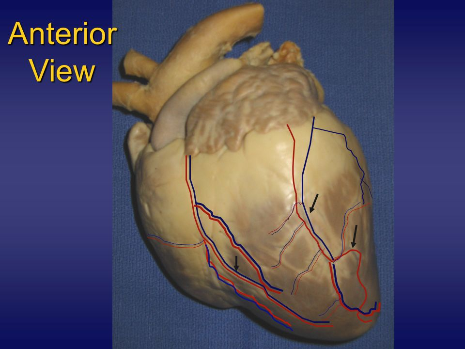 Anterior View The right coronary artery is found in the coronary sulcus. It carries blood to the right atrium & portions of both ventricles.