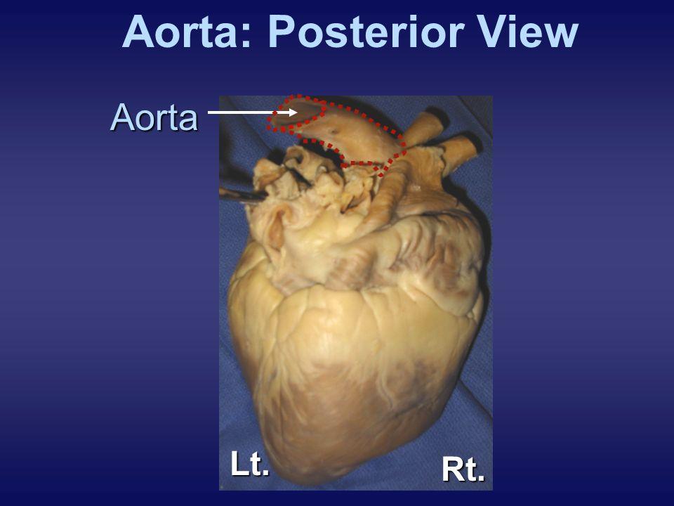 Aorta: Posterior View Aorta Lt. Rt. EXPLANATION: