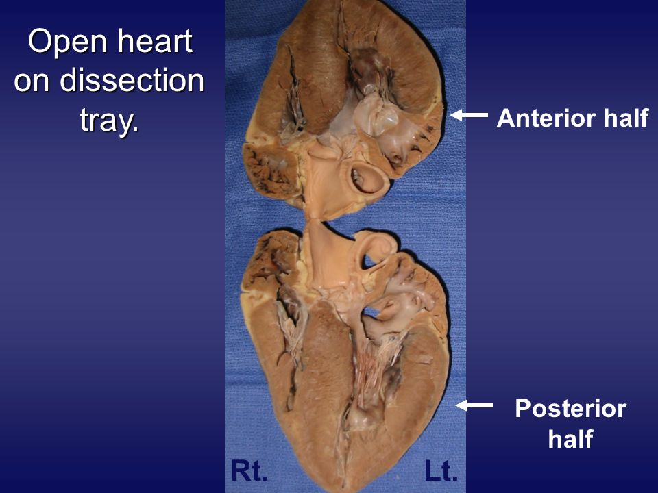 Open heart on dissection tray.