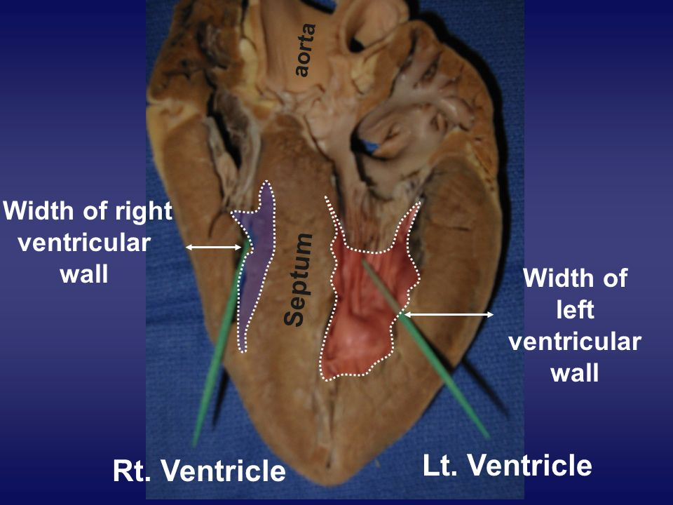Width of right ventricular wall Width of left ventricular wall