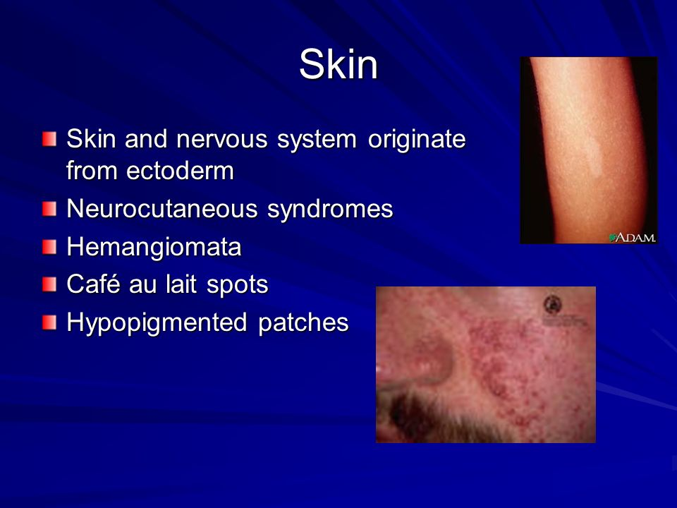 Skin Skin and nervous system originate from ectoderm