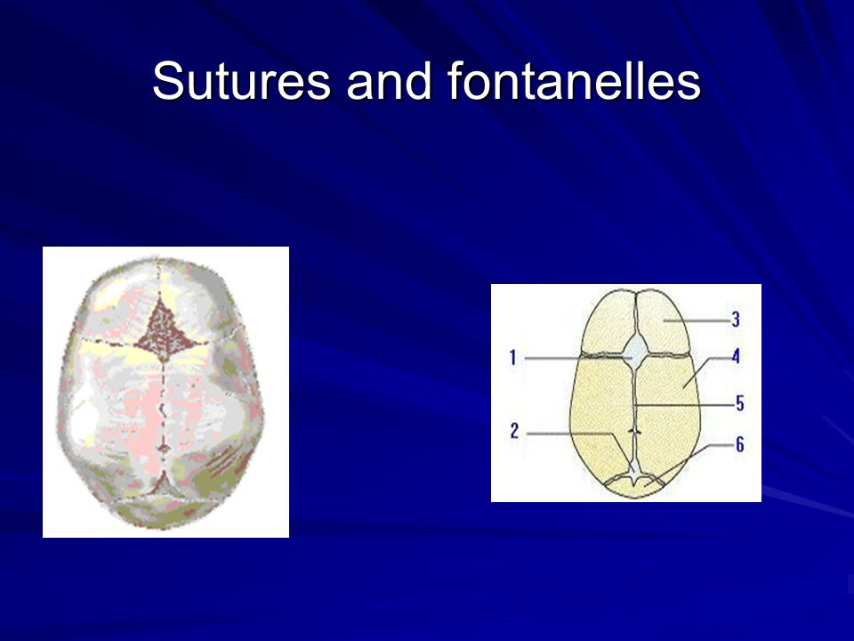 Sutures and fontanelles