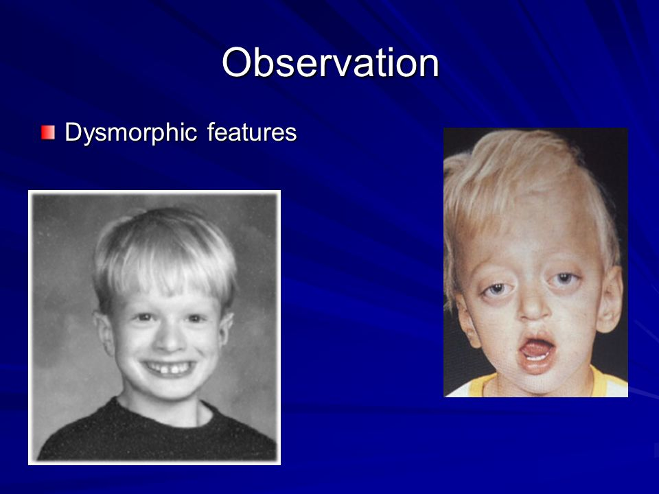 Observation Dysmorphic features
