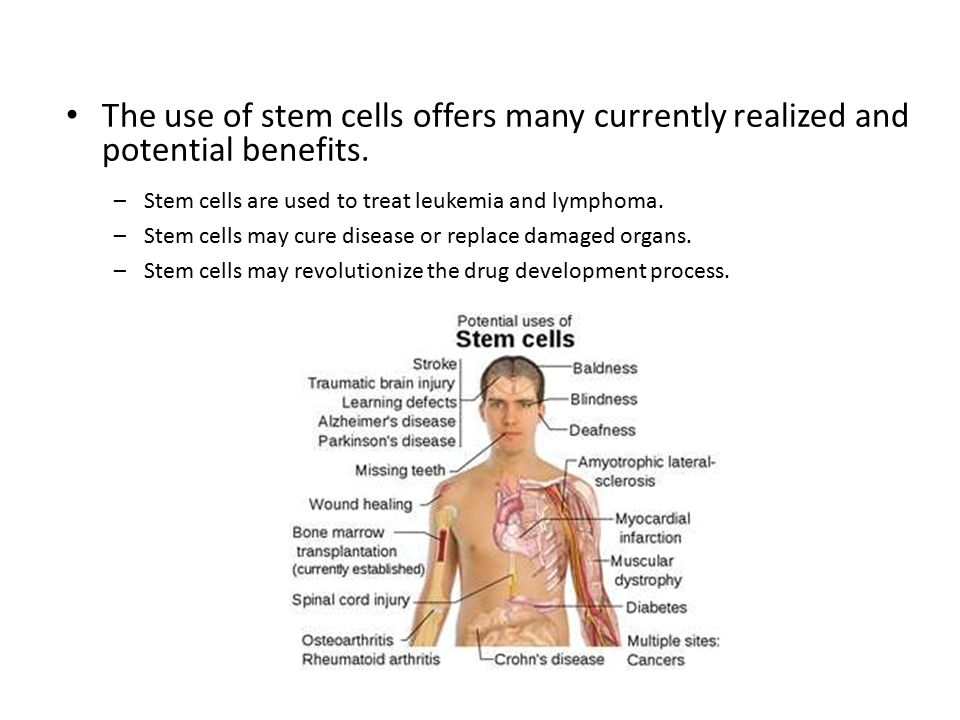 The use of stem cells offers many currently realized and potential benefits.