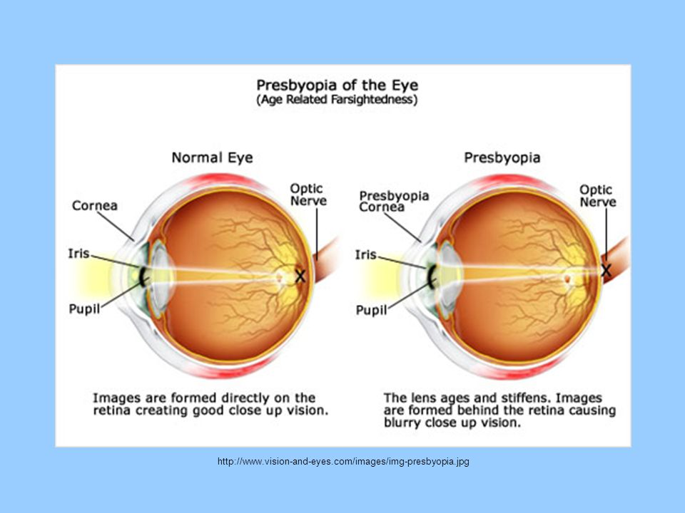http://www.vision-and-eyes.com/images/img-presbyopia.jpg