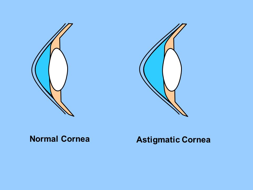 Normal Cornea Astigmatic Cornea