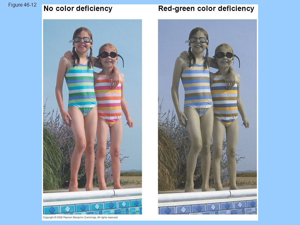 Red-green color deficiency