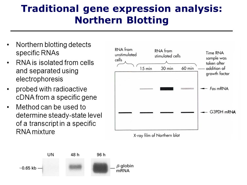 Traditional gene expression analysis: Northern Blotting