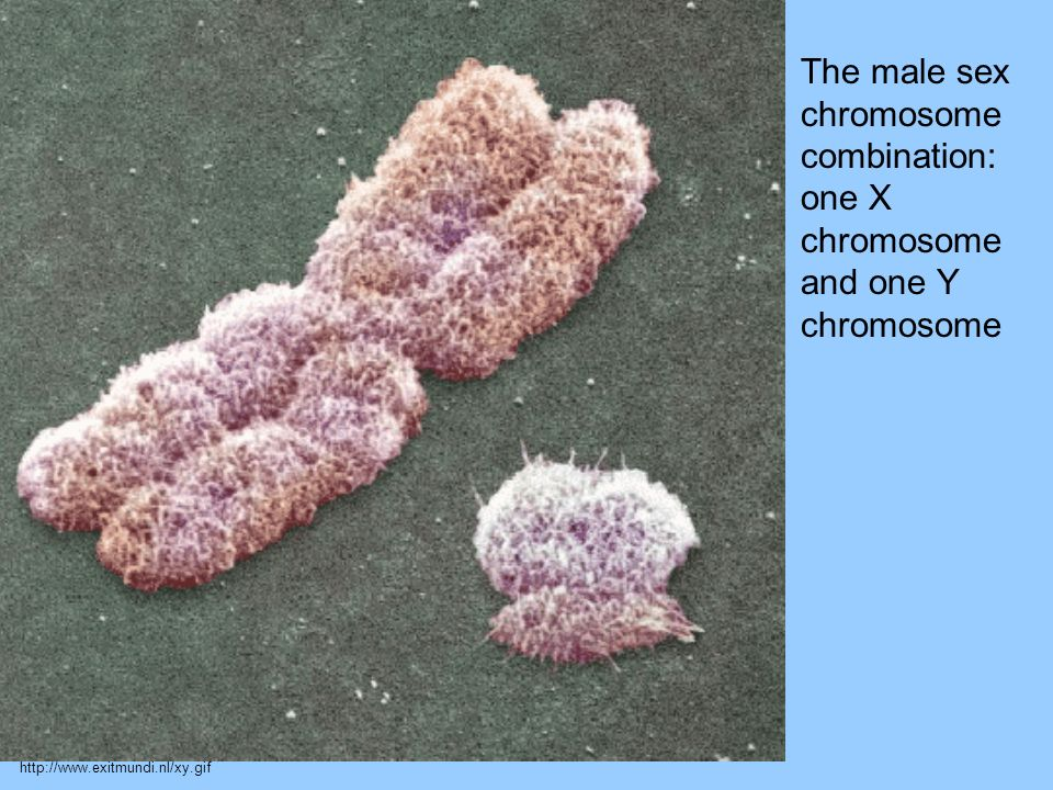 The male sex chromosome combination: one X chromosome and one Y chromosome