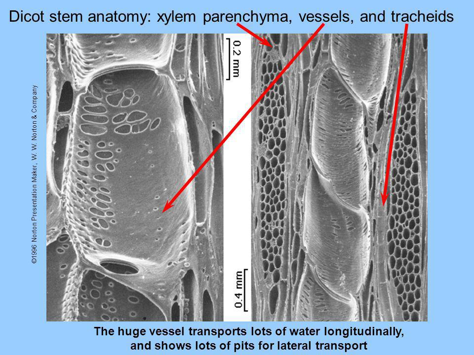 Dicot stem anatomy: xylem parenchyma, vessels, and tracheids