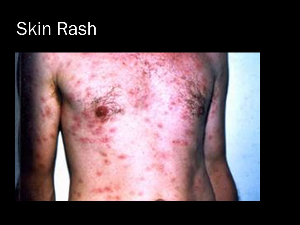 Primary Syphilis Rash The Treponemal ...