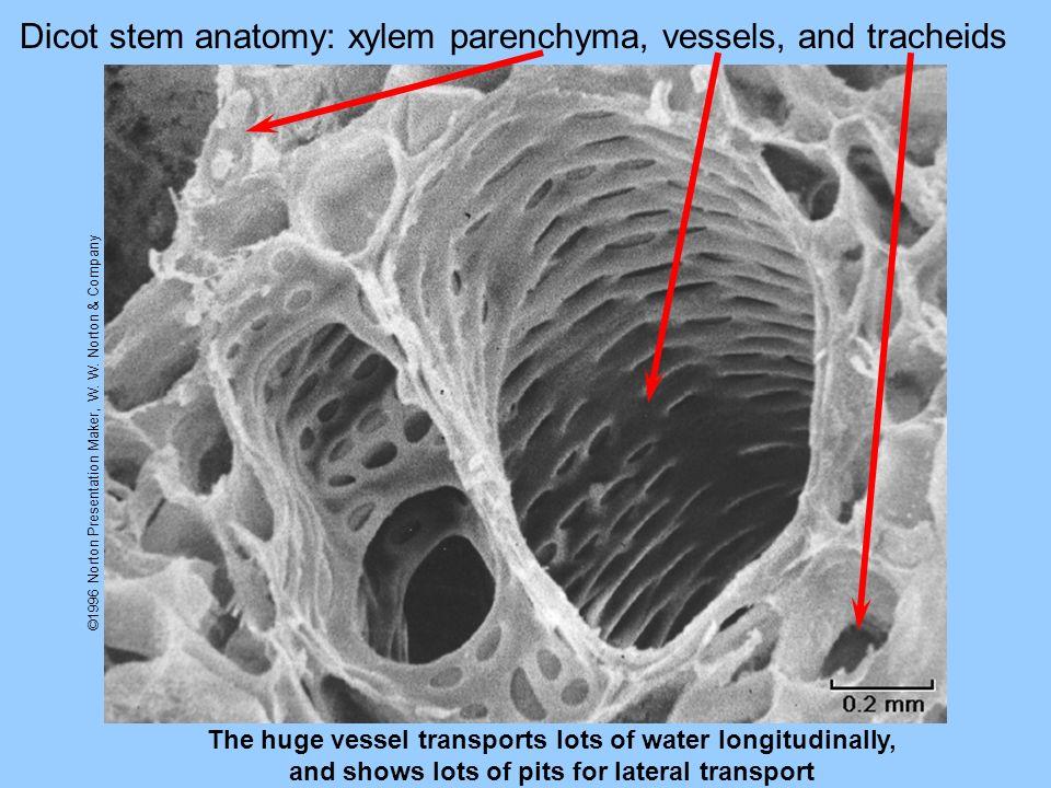 Dicot stem anatomy: xylem parenchyma, vessels, and tracheids