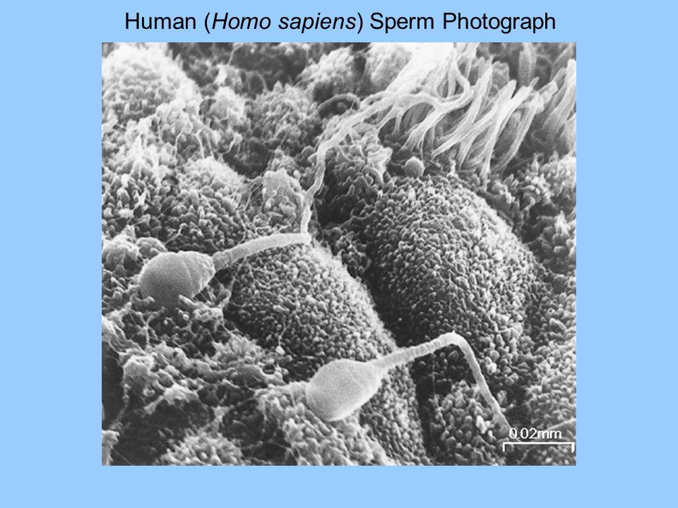 Human (Homo sapiens) Sperm Photograph
