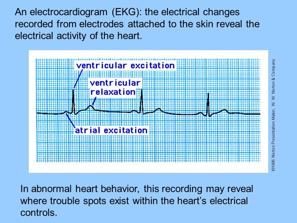An electrocardiogram (EKG): the electrical changes recorded from electrodes attached to the skin reveal the electrical activity of the heart.