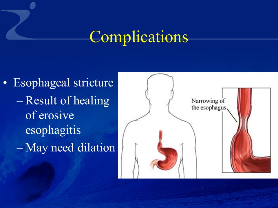 gastroesophageal reflux Webmd offers a comprehensive look at the causes, symptoms, and treatments of gastroesophageal reflux disease (gerd), a digestive disorder that can lead to serious complications.