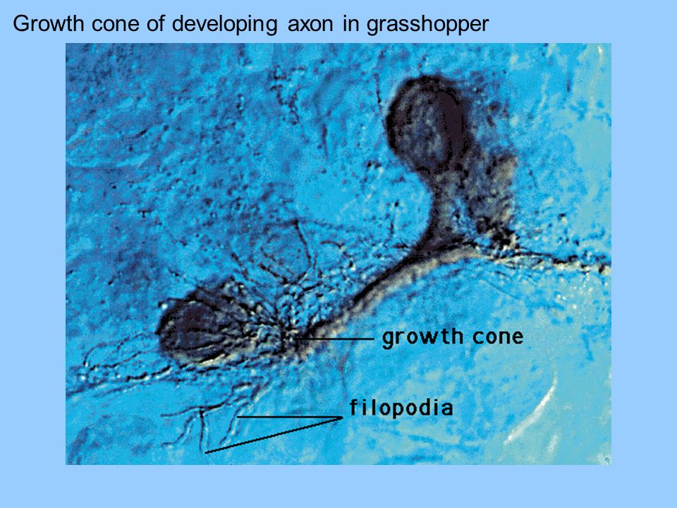 Growth cone of developing axon in grasshopper