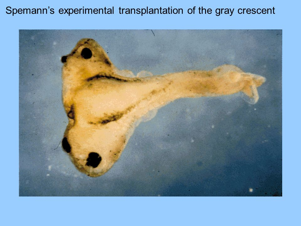 Spemann's experimental transplantation of the gray crescent
