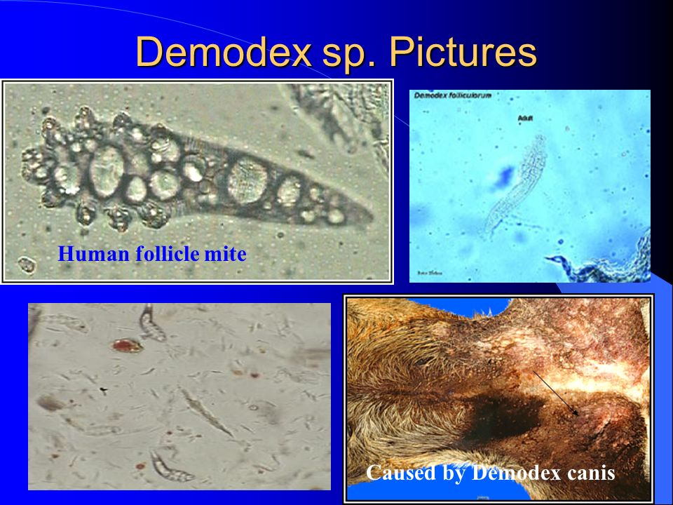Demodex sp. Pictures Human follicle mite Caused by Demodex canis