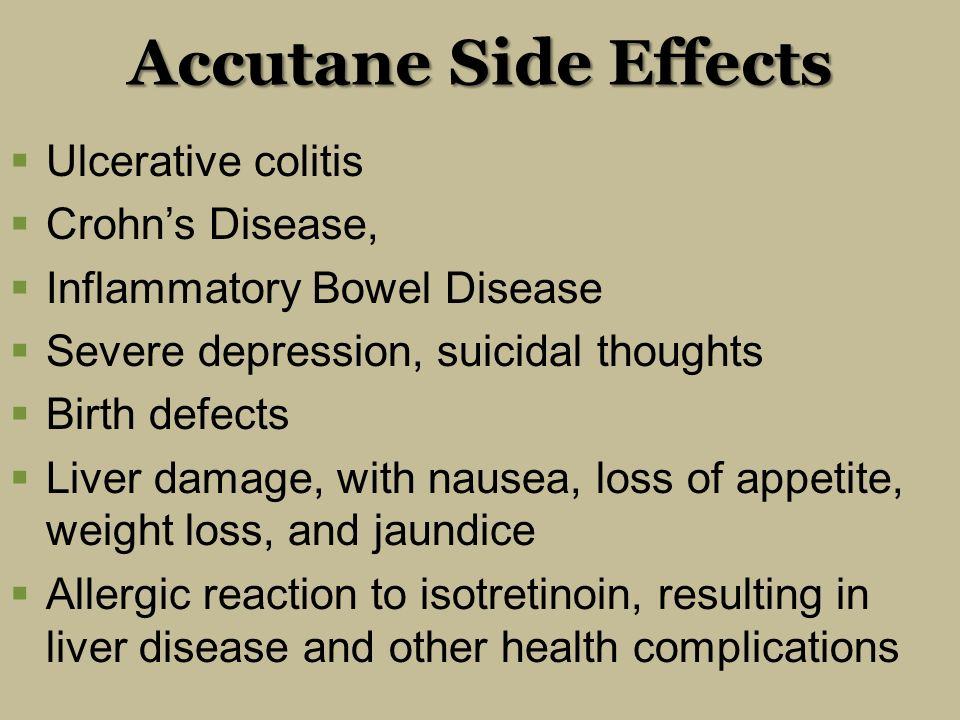 Inflammatory bowel disease and isotretinoin