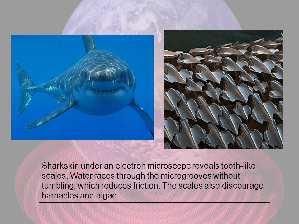 Sharkskin under an electron microscope reveals tooth-like scales