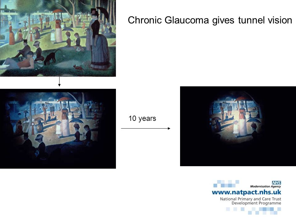 Chronic Glaucoma gives tunnel vision