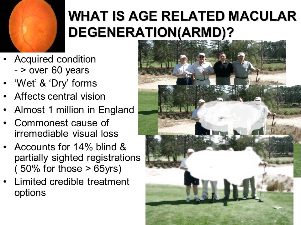 WHAT IS AGE RELATED MACULAR DEGENERATION(ARMD)