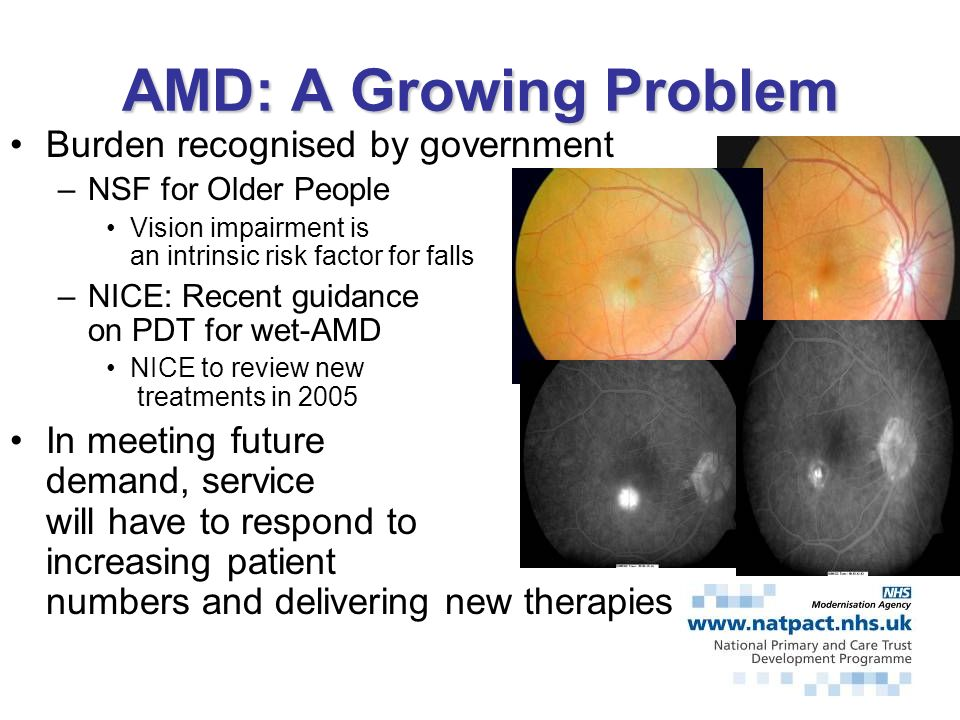 AMD: A Growing Problem Burden recognised by government