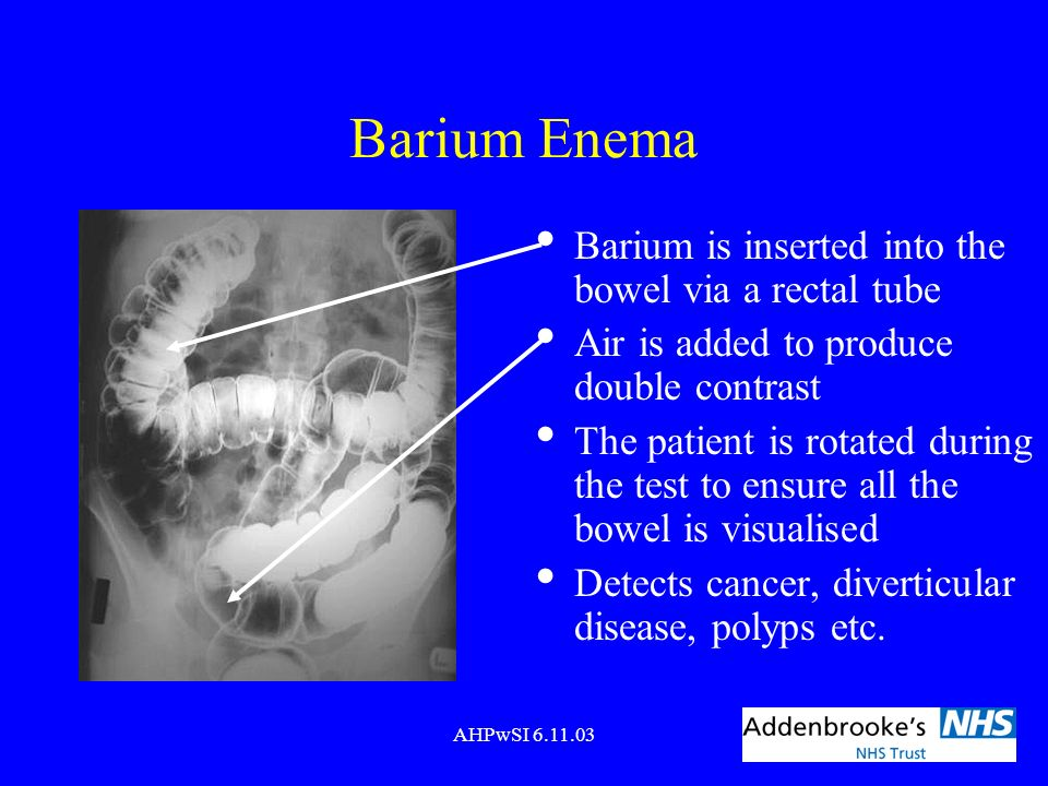 Barium Enema Barium is inserted into the bowel via a rectal tube