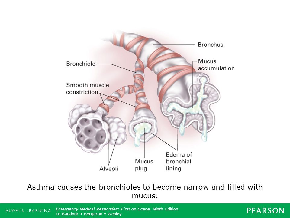 Asthma causes the bronchioles to become narrow and filled with mucus.