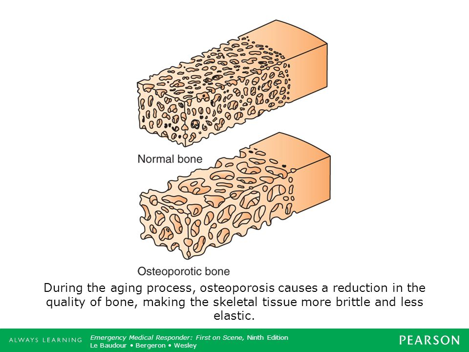 During the aging process, osteoporosis causes a reduction in the quality of bone, making the skeletal tissue more brittle and less elastic.