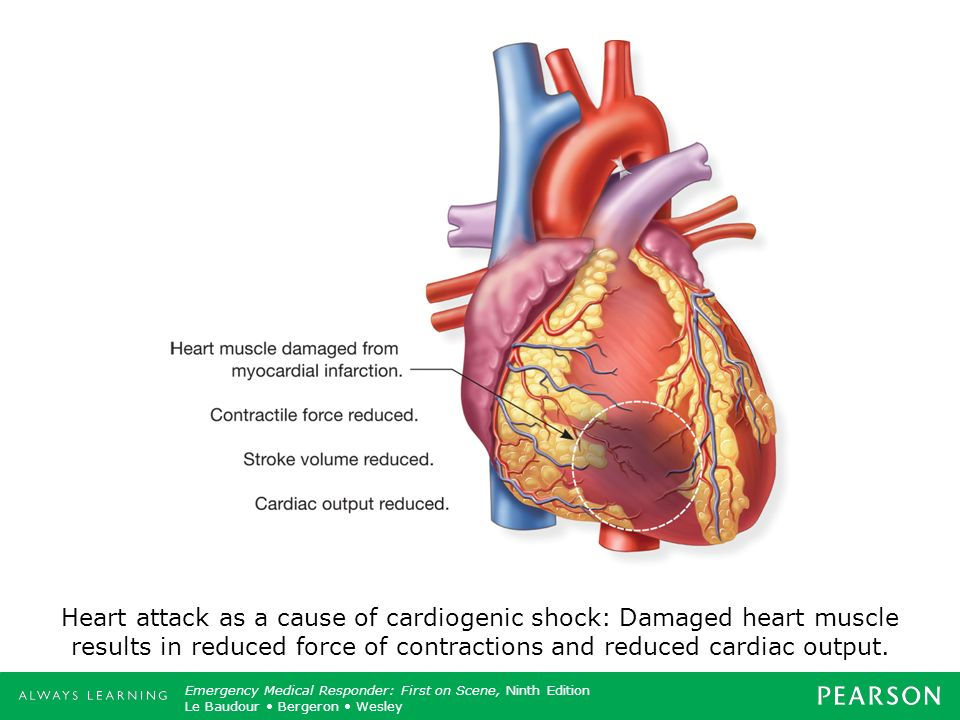 Discussion Topic: Discuss how the heart is a muscle and how damage from a heart attack will impact its ability to pump blood.