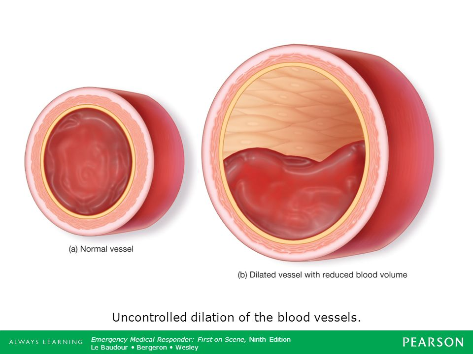 Uncontrolled dilation of the blood vessels.
