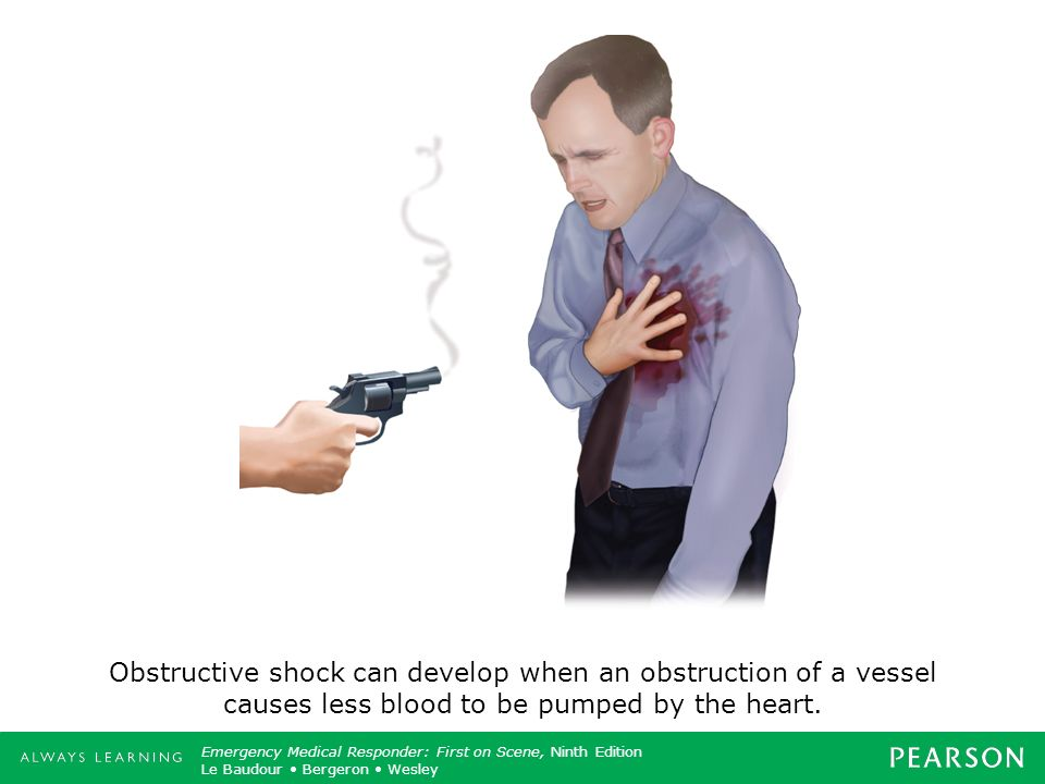 Obstructive shock can develop when an obstruction of a vessel causes less blood to be pumped by the heart.