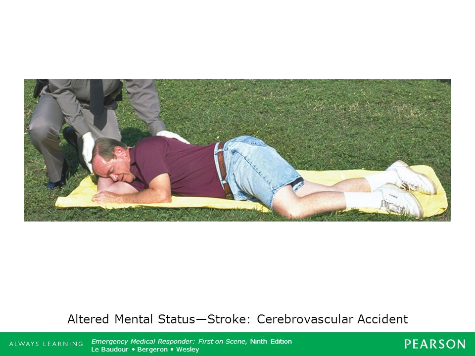 Altered Mental Status—Stroke: Cerebrovascular Accident