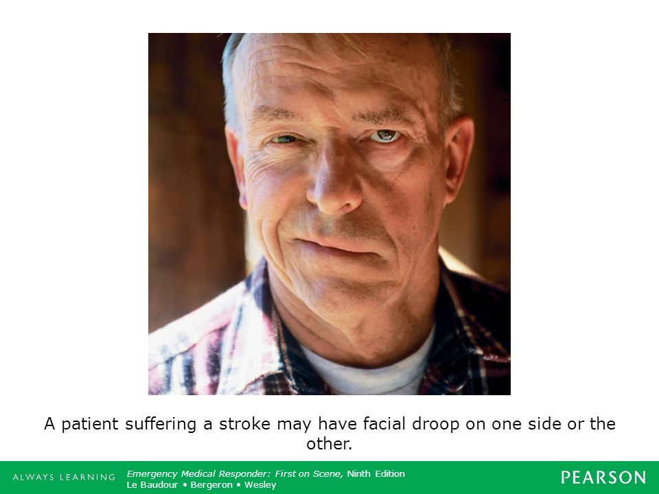 A patient suffering a stroke may have facial droop on one side or the other.