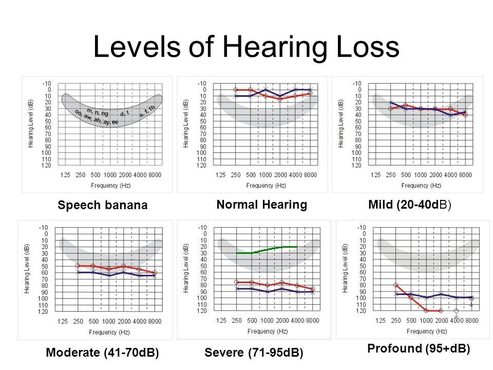 Levels of Hearing Loss Normal Hearing Mild (20-40dB) Speech banana