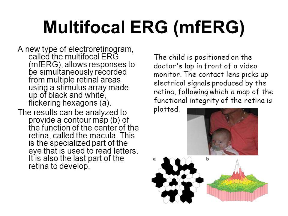Multifocal ERG (mfERG)