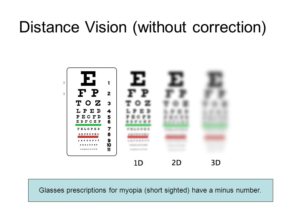 Distance Vision (without correction)