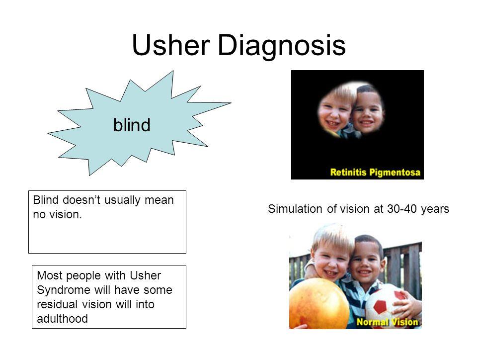 Simulation of vision at 30-40 years