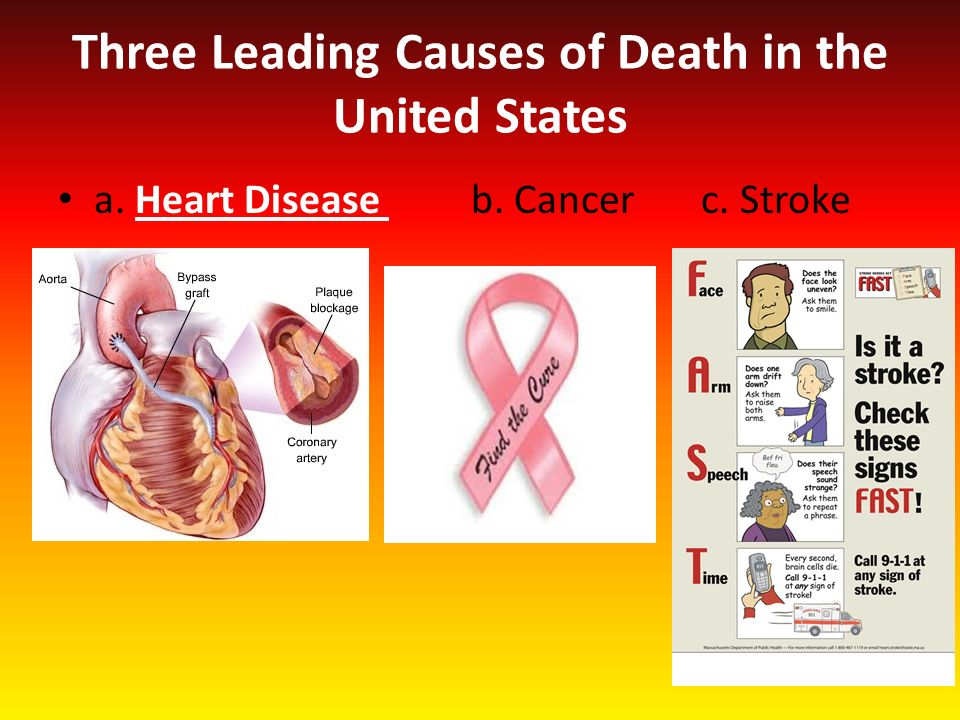 heart attacks are the leading cause of death in the united states Heart disease has long been known to be the leading cause of death in the united states now, a new study shows that heart attacks, strokes and other cardiovascular.