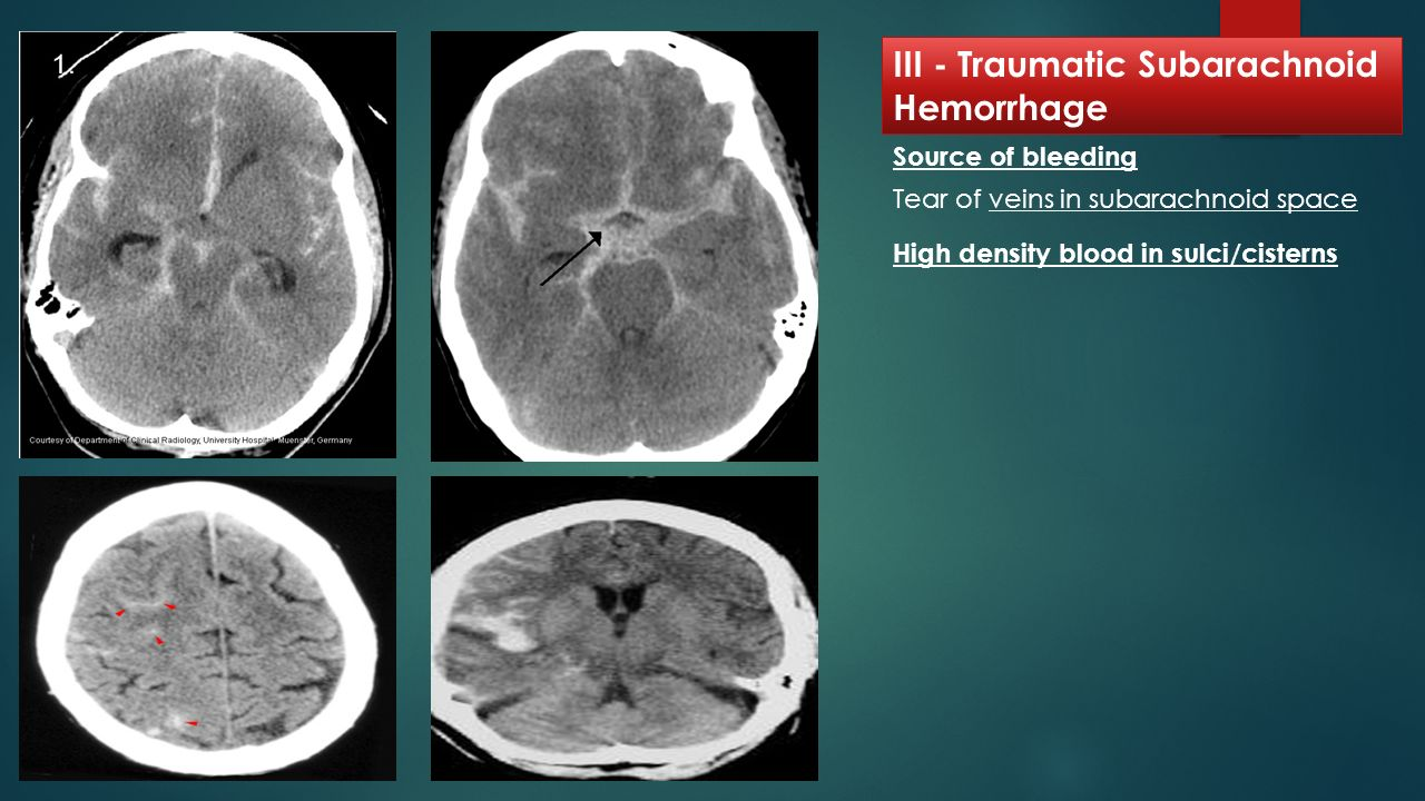 CT scan in head and spine injuries - ppt video online download