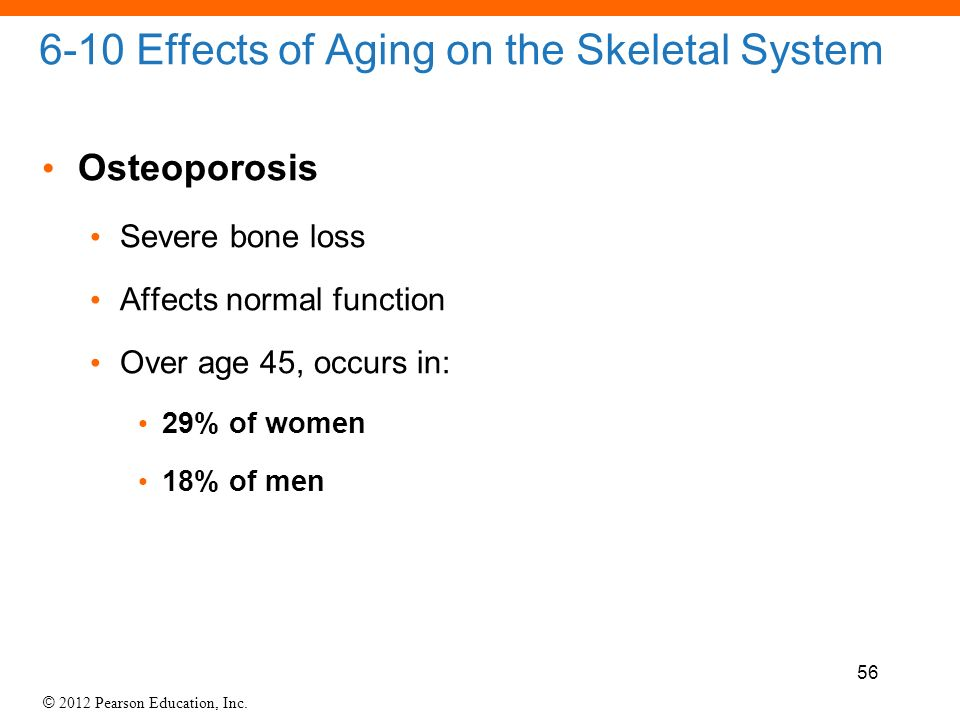 A discussion of the impact of osteoporosis on the skeletal structure