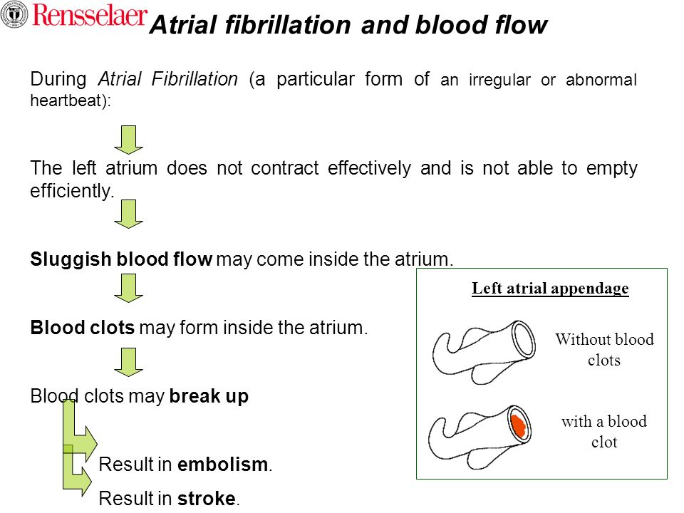 Atrial fibrillation and blood flow